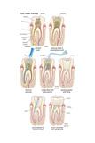 Dental Implant Dentistry  Endodontics  Teeth  Tooth Damage  Oral Health  Health and Disease
