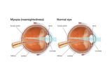 Farsighted Eye (Hyperopia) Convex Lens  Ophthalmology  Health and Disease