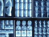 Blue Rows of Various X-Ray Images of Bones