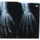 Black and White X-Ray Photograph of Hands of Person Papier Photo
