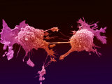 Lung Cancer  Electron Microscopy Unit  Cancer Research  UK