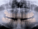 Panoramic X-Ray of Mouth Papier Photo