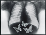 X-ray of butterflies in the stomach Papier Photo par Thom Lang