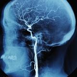 X-Ray of Human Head Papier Photo par Robert Llewellyn