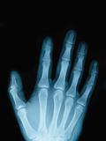 X-Ray of a Hand Papier Photo par Robert Llewellyn
