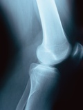 Knee Joint X-Ray