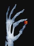 Skeletal Hand Holding Computer Chip