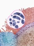 Pneumocystis Fungus Pathogen in Human Tissue  TEM