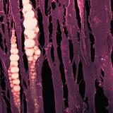Bone Marrow  SEM