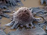 Lung Cancer Cell  SEM X3500