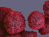 Pancreatic Cancer Cells  SEM
