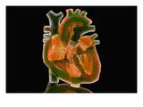 Biomedical Illustration of a Glass Heart