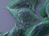 Lung Cancer Cells  SEM