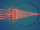 Parallel Rays of Light Enter a Nearsighted Eye with a Corrective Diverging Lens