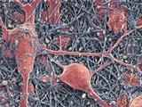 Nerve Cells And Glial Cells  SEM