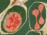 Lung Alveoli And Blood Cells  TEM