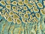 Spinal Root Nerves  SEM