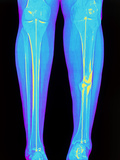 Coloured X-ray of Fractured Shin Bone (tibia)