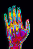 Coloured X-ray of the Healthy Hand of a Man