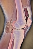 Osteoarthritic Knee X-ray