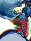 Arthritis In Neck  X-ray