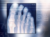 Toes  X-ray