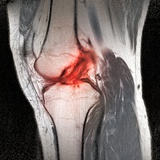 Anterior Cruciate Ligament Tear  CT Scan