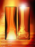 Healing Ankle Fracture  X-ray
