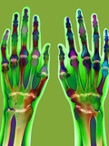 Arthritic Hands  X-ray