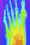 Normal Left Foot  X-ray