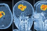 Brain Tumour  MRI Scan