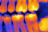 Teeth with Fillings  X-ray