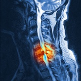 Slipped Disc  MRI Scan