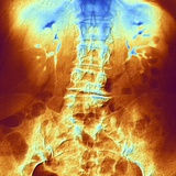 False-col X-ray of Lumbar Spine of Woman