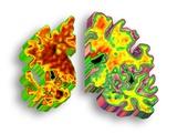 Alzheimer's Disease  Artwork