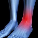 Ankle Pain  Conceptual Artwork