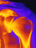 Shoulder Joint X-ray