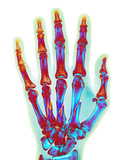 Fractured Palm Bones of Hand  X-ray